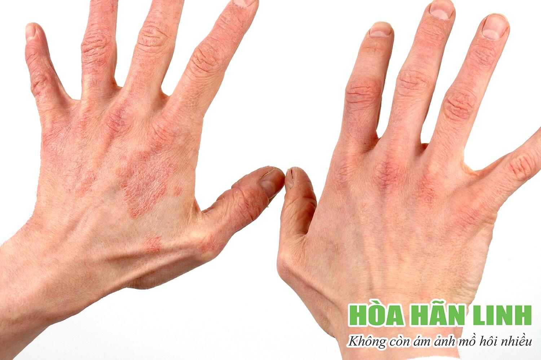 Viêm da do mồ hôi nhiều gây bất tiện cho người bệnh